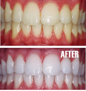 Teeth Whitening Palmetto Bay , Teeth Whitening Miami , Teeth Whitening Near Kendall