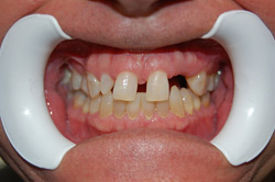 Cosmetic Dentistry Miami - Before