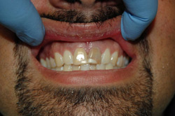 Dental Veneers Near Palmetto Bay