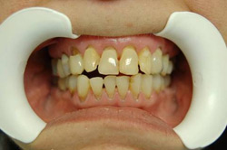 Full Mouth Reconstruction, Miami - Before