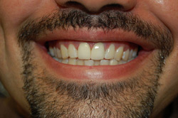 After Veneers , Dental Veneers Near South Miami